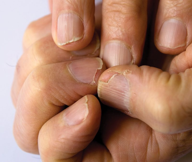Bad Habits that Damage Your Nails |nuvail.com