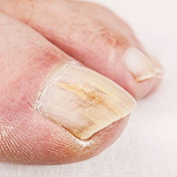 Treat Cracked Nails | Broken Fingernail Treatment | Nuvail