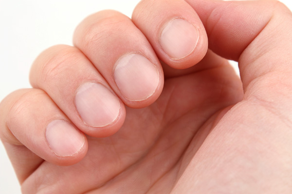 Weak Nails Solutions: How To Protect Weak Fingernails and Toenails