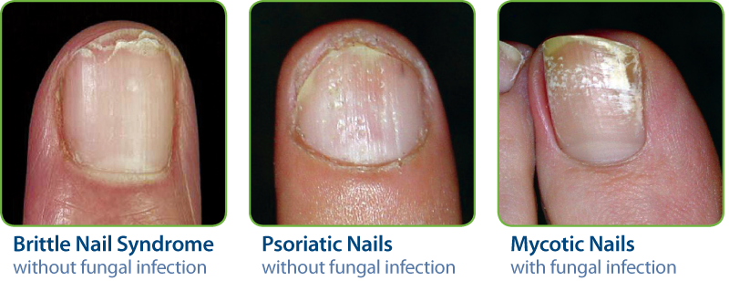 Common Symptoms Of Damaged Nails²